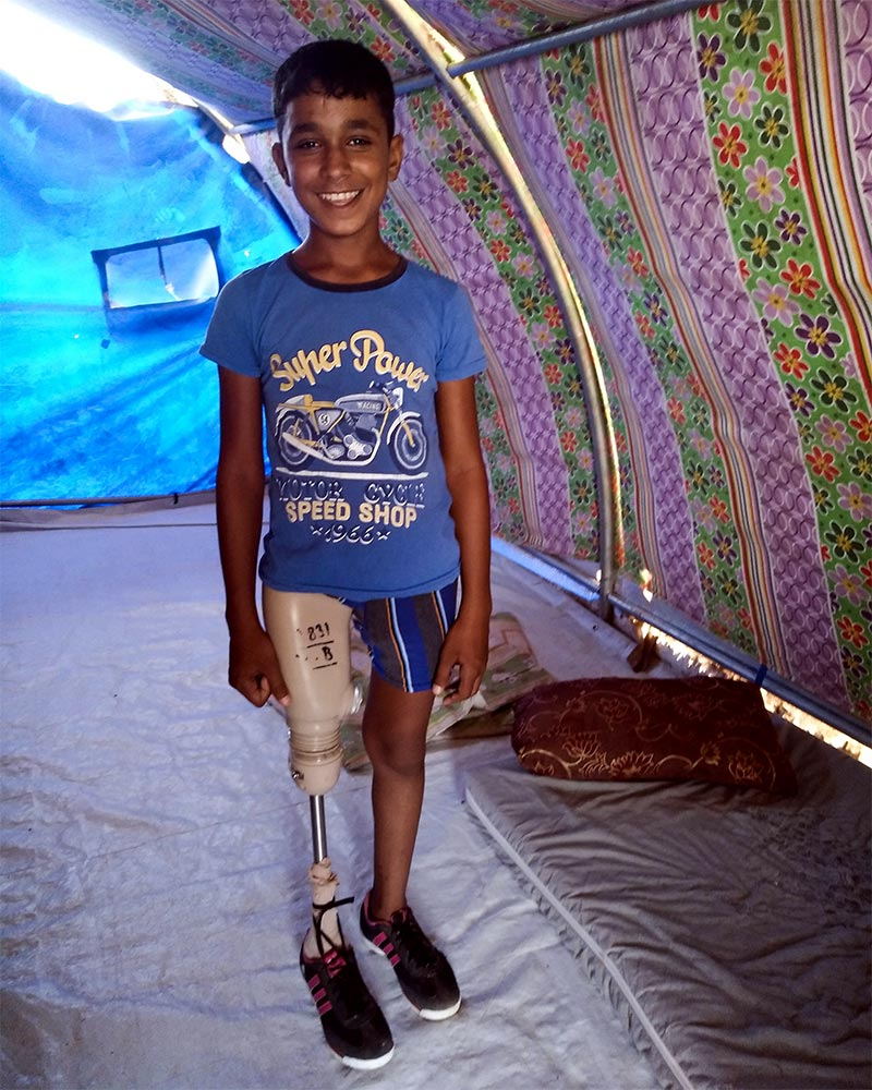 Abdel Rahman standing with his new artificial leg provided by Handicap International.