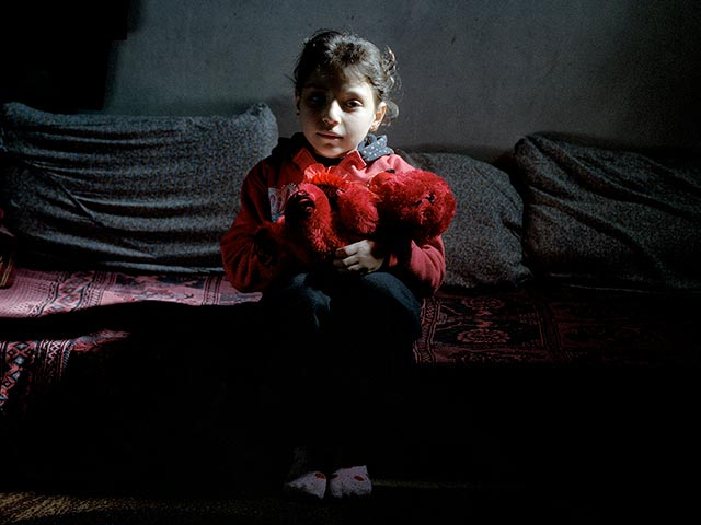 Sondos, 8, ws injured in a bombing on her school in Syria