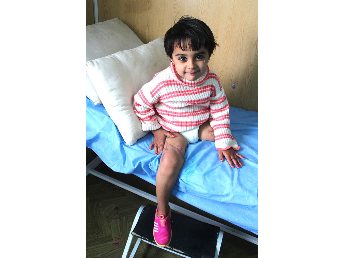 Malak, 5, sitting on the treatment table