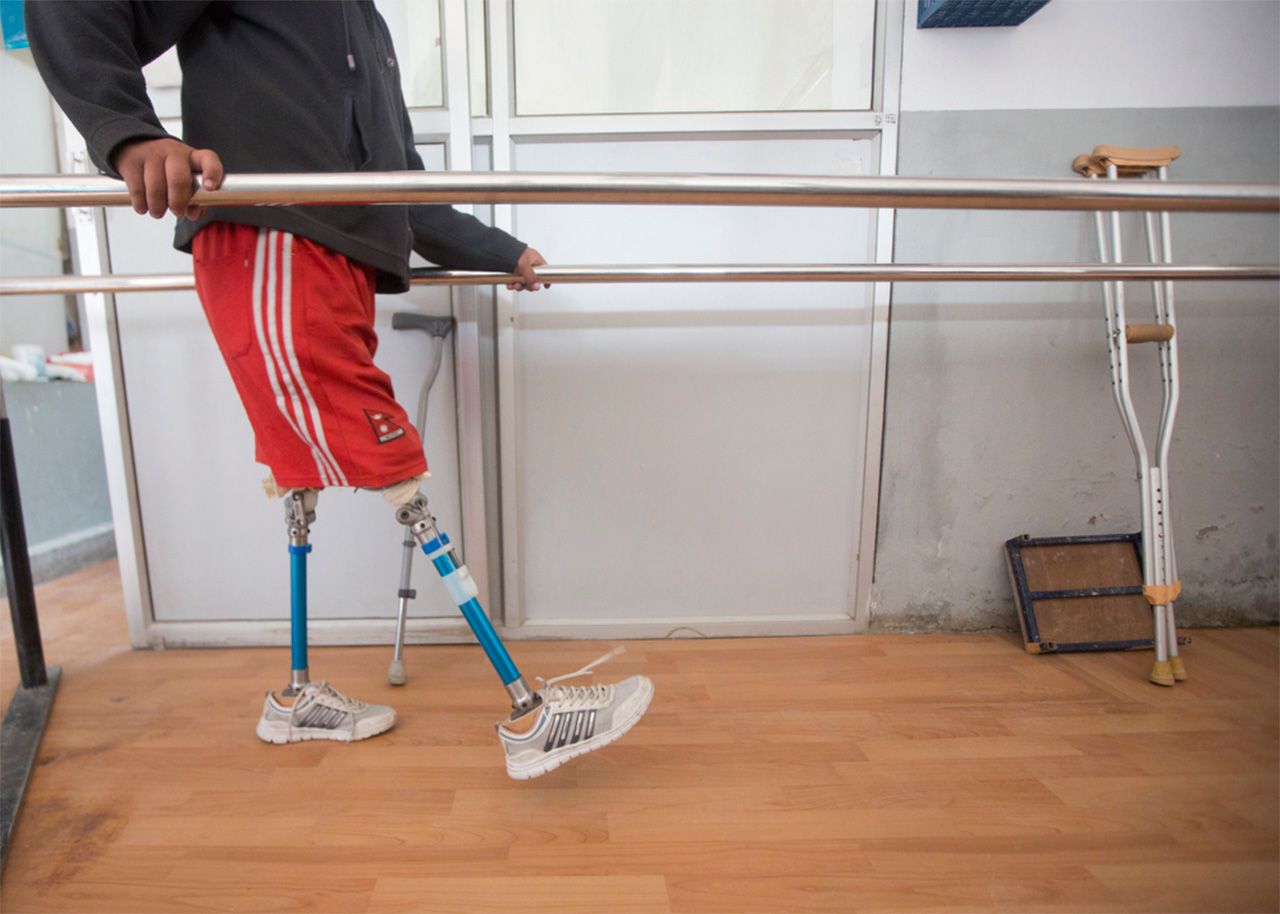 Ramesh uses the walkway within the NDF clinic to train on his prosthetics