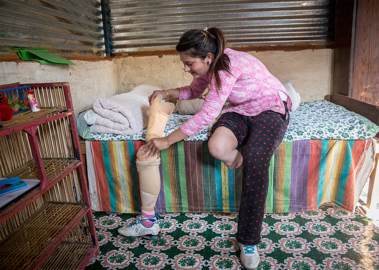 To prevent the prosthetic from rubbing her leg Uma must wear a bandage on a protective layer over her stump