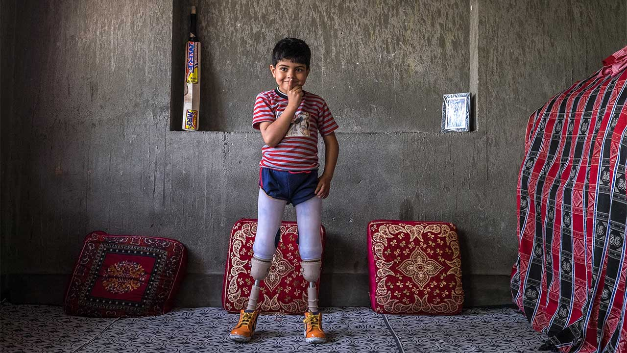 Fayaz, 5, standing up using his artificial legs, Kashmir