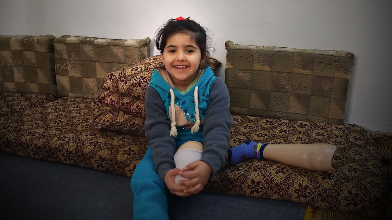 Salam sitting on the sofa with her prosthetic leg