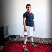 Qusay standing tall on his new prosthetic legs, Jordan