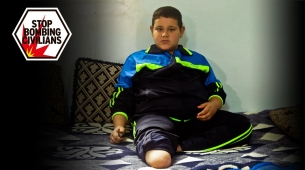 Mohamaed, 9, who lost his leg in a bombing in Syria