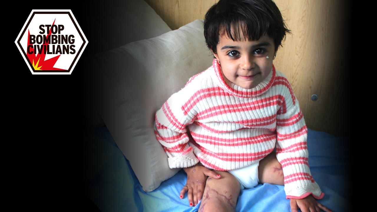 Malak, 5, lost her leg in a bombing in Syria