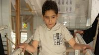 Yasser, 12, during a rehabilitation session at the Sana'a centre