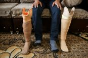 Hussein was amputated following a bombardment and now wears a prosthesis. He explains his difficulties as a disabled person to find a job.