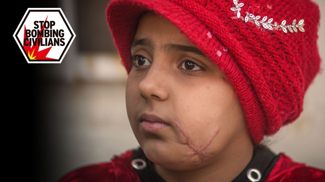 Nada, 10, lost her leg and was badly injured in the chest and face in a bombing in Mosul in April 2017.