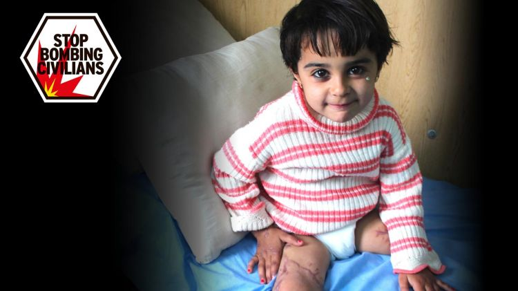 Malak, aged 5, in a rehabilitation session. She lost her leg in a bombing in Syria