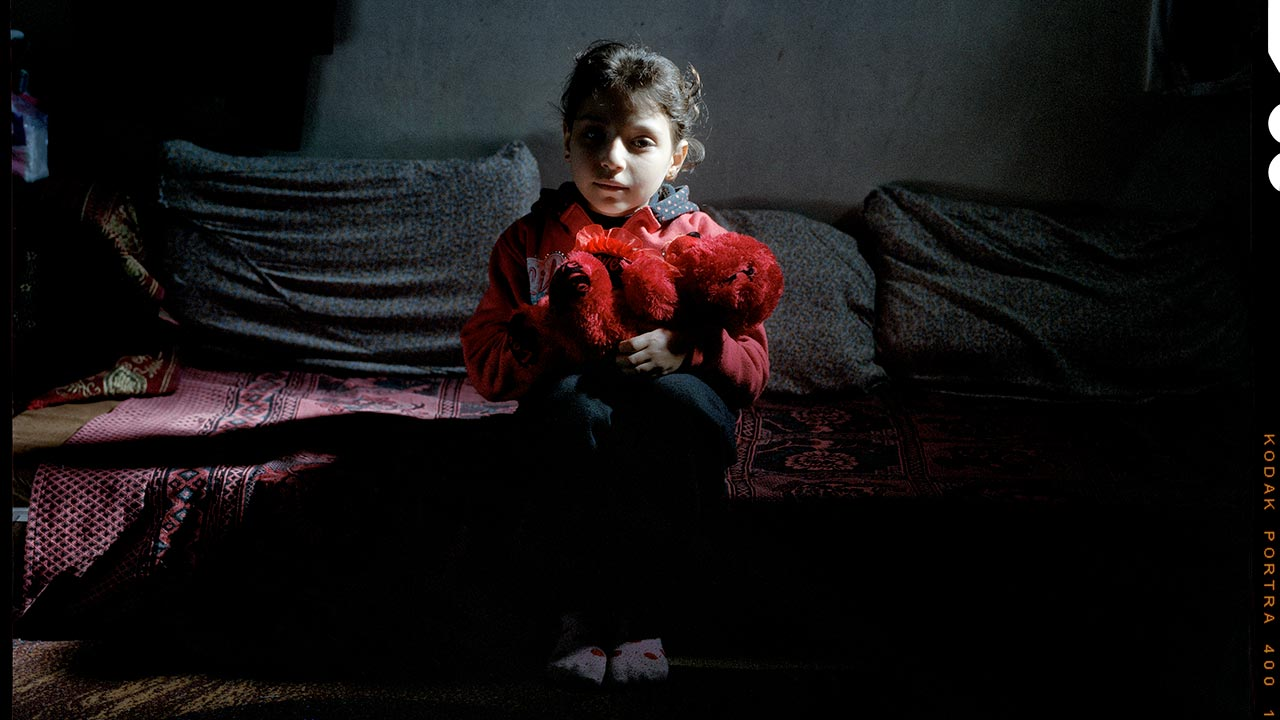 Sondos, 8, ws injured in a bombing on her school in Syria.