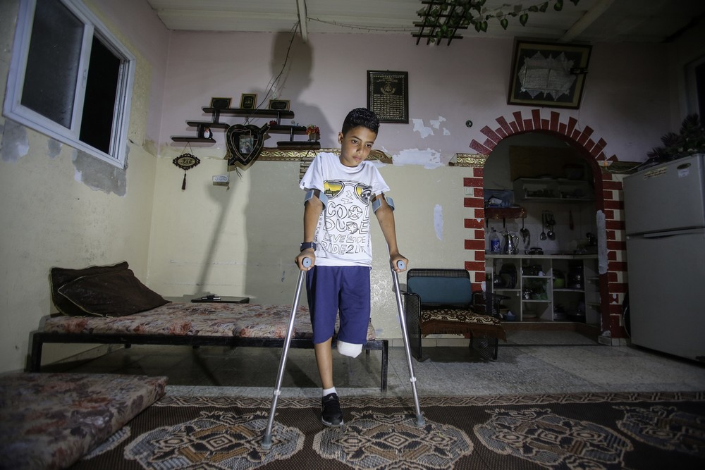 A 11-year-old boy who lost his leg during the demonstrations in Gaza on 12th May 2018. © Ali Jadallah / Anadolu Agency / AFP