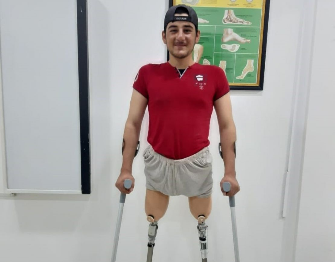 Ismail is pleased with his new prostheses