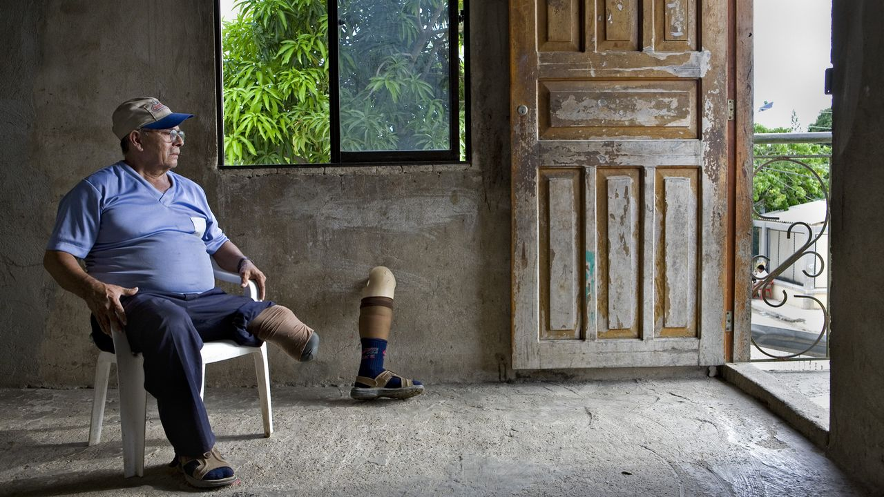 Carlos Filo, an anti-personal landmine victim, is sitting in his home.