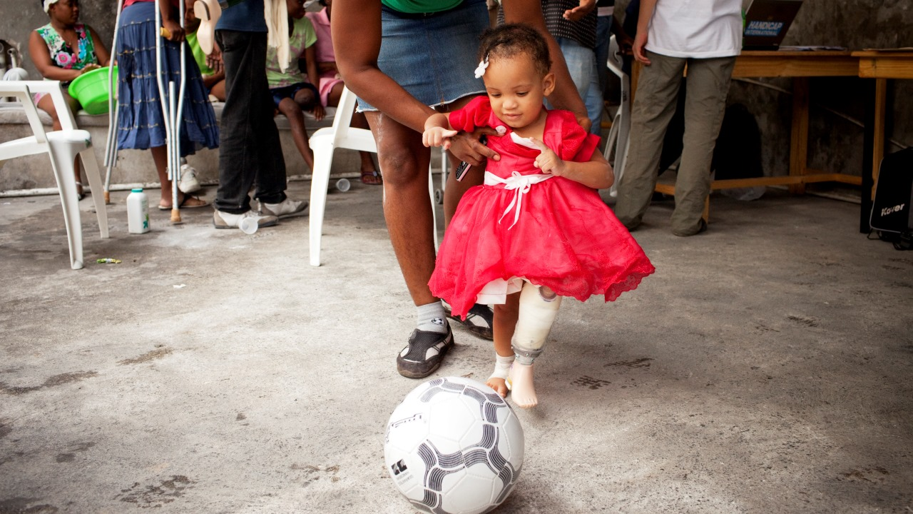 Blaurah, 17 months, tries playing football with her first prosthesis with the help of her mother, at an orthopaedic centre in Haiti.