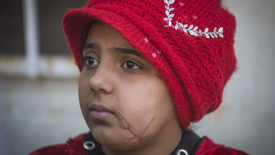Nada is 10 years old and was injured with her father in a bombing in Mosul, in April 2017.
