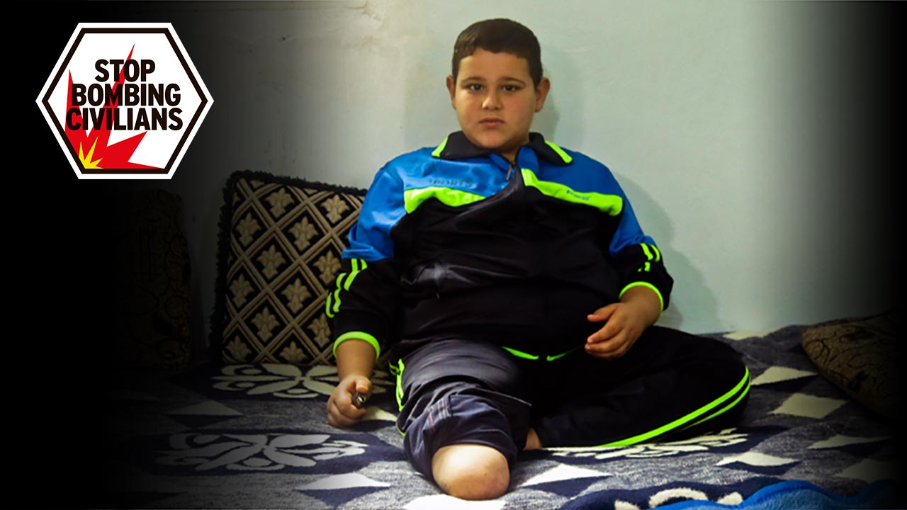 Mohamaed, 9, who lost his leg in a bombing in Syria; }}