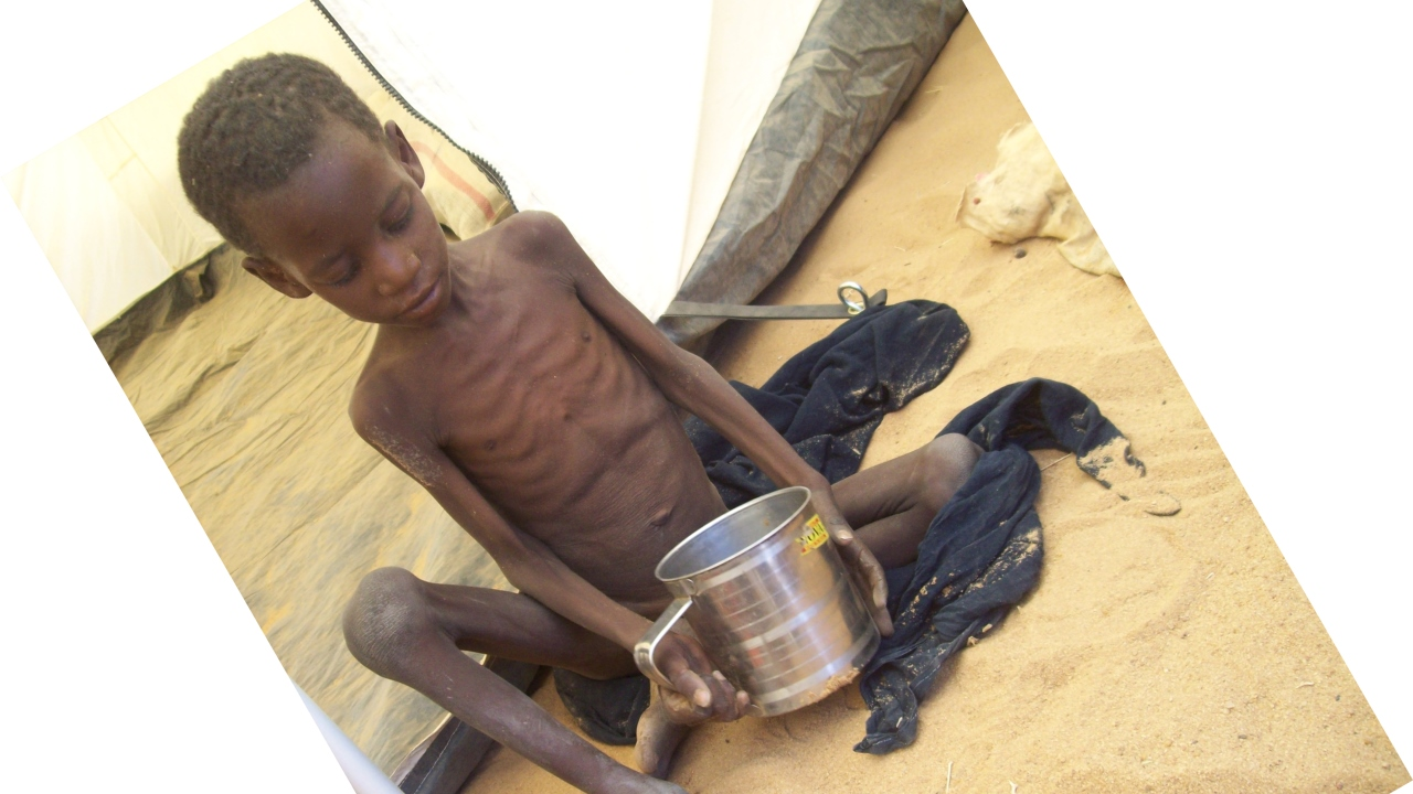 A malnourished child refugee found during an evaluation mission in the Abala camp north of Niamey, Niger.