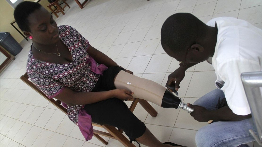 A trial participant receives her bespoke 3D printed socket