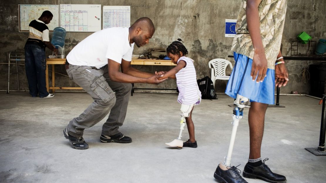 Fymee learning to walk again on her new artificial leg, Port-au-Prince, Haiti.